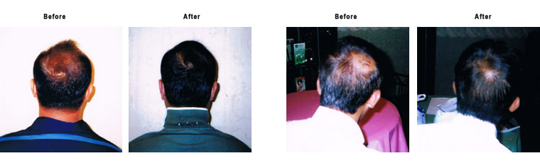 Testimonials Hair Treatment